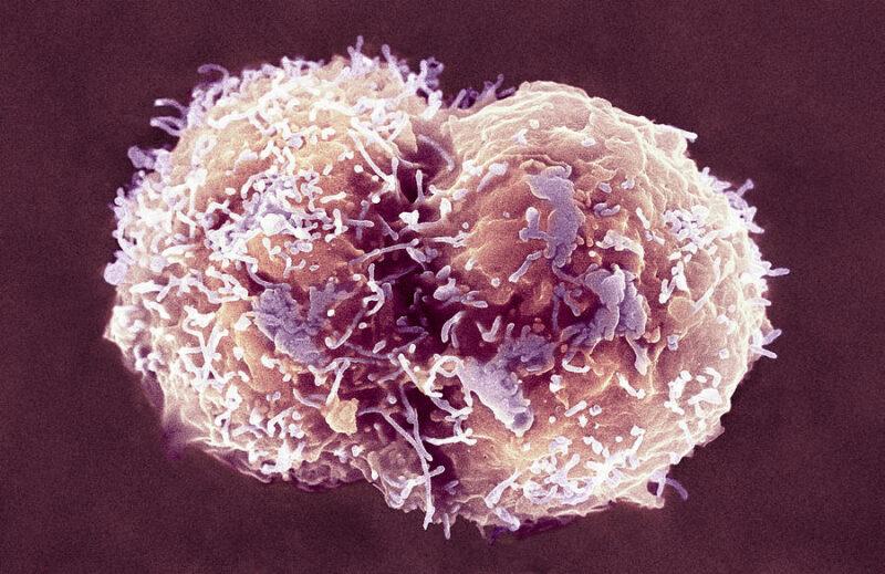 VII Всероссийская научно-практическая конференция с международным участием «Проблемы иммуногенетики в трансплантации органов, тканей и гемопоэтических стволовых клеток» 17-18.06.2021 г.